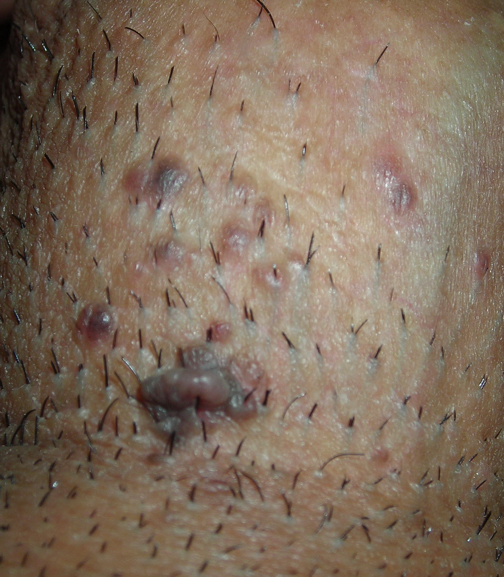 On vagina contagiosum Molluscum the